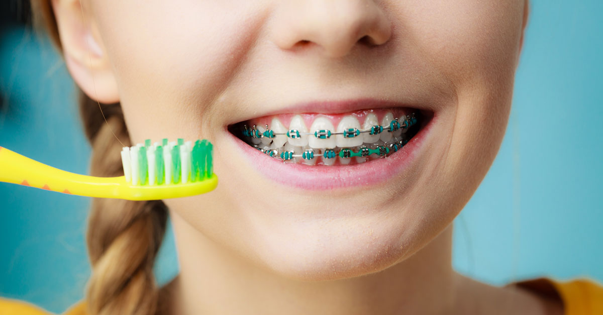 Tips for Keeping Your Teeth and Braces Clean from Your Carbondale Dentists