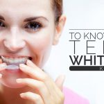 All You Need to Know About Teeth Whitening Kits