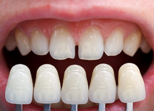 Scraping Teeth to Whiten Them - Elevate Dental