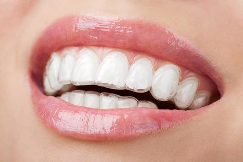 Whitening Kits - Elevate Dental