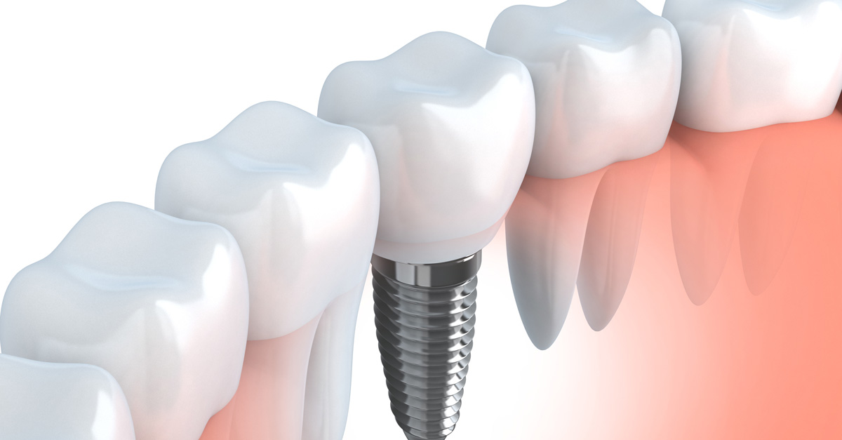 An Explanation of Dental Implants