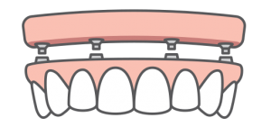 Full-arch replacement icon