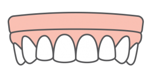 Implant dentures icon, one of our dental implant solutions