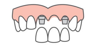 Multiple teeth replacement icon
