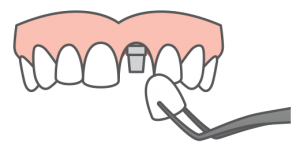 Single tooth replacement icon, one of our dental implant solutions.
