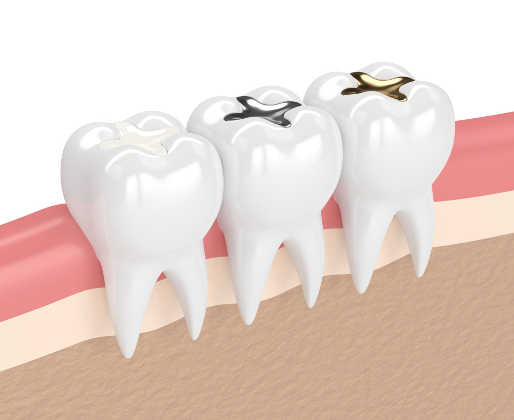 illustration of teeth with gold, amalgam and composite inlay dental filling in gums
