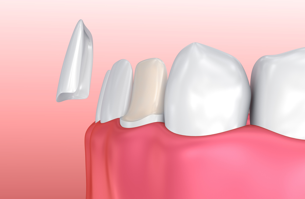 Porcelain Veneer installation Procedure. 3D illustration