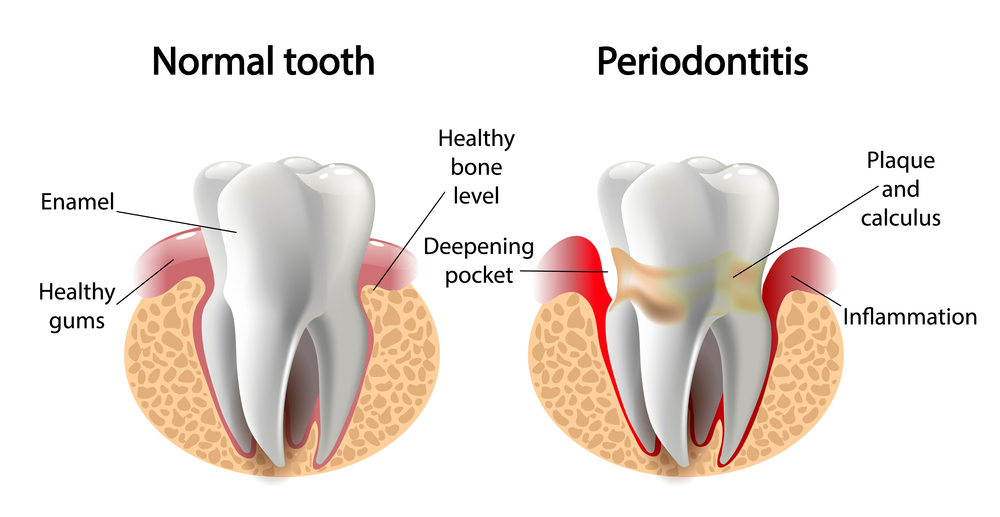 a healthy tooth compared to a tooth with periodontitis