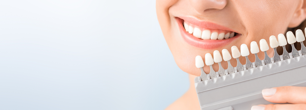 woman holding different shades of teeth for a whitening treatment