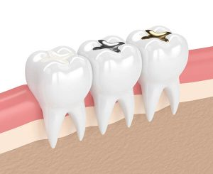 Virtual model showing three teeth with gold, metal, and composite fillings for comparison